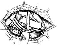 平足症/图32A.缝合关节囊、韧带骨瓣后,从舟背侧向跖侧钻孔
