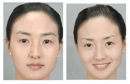 打瘦脸针前后对比图