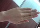 皮肤皲裂治疗